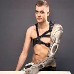 prosthetic-arm